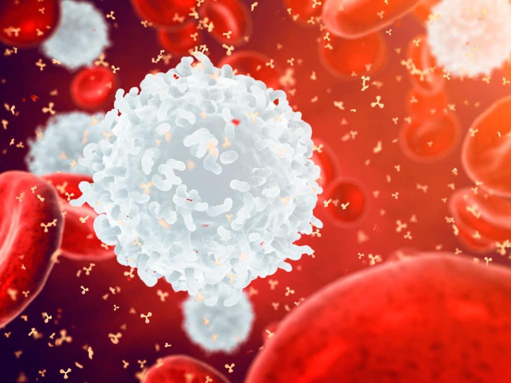 ابيضاض الدم اللمفاوي الحاد: الأسباب والأعراض والتشخيص والعلاج