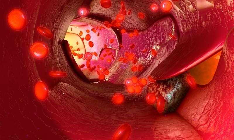 ليزر جديد يمكن أن يستهدف الخلايا السرطانية ويقتلها في مجرى الدم