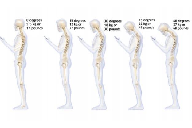 استخدام الهاتف المحمول وتأثيره على عظام الرقبة