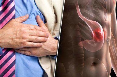 سرطان المعدة: الأسباب والأعراض والتشخيص والعلاج تكوّن لبعض الخلايا غير الطبيعية التي تشكل فيما بعد كتلة سرطانية في أحد أجزاء المعدة
