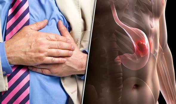 سرطان المعدة: الأسباب والأعراض والتشخيص والعلاج