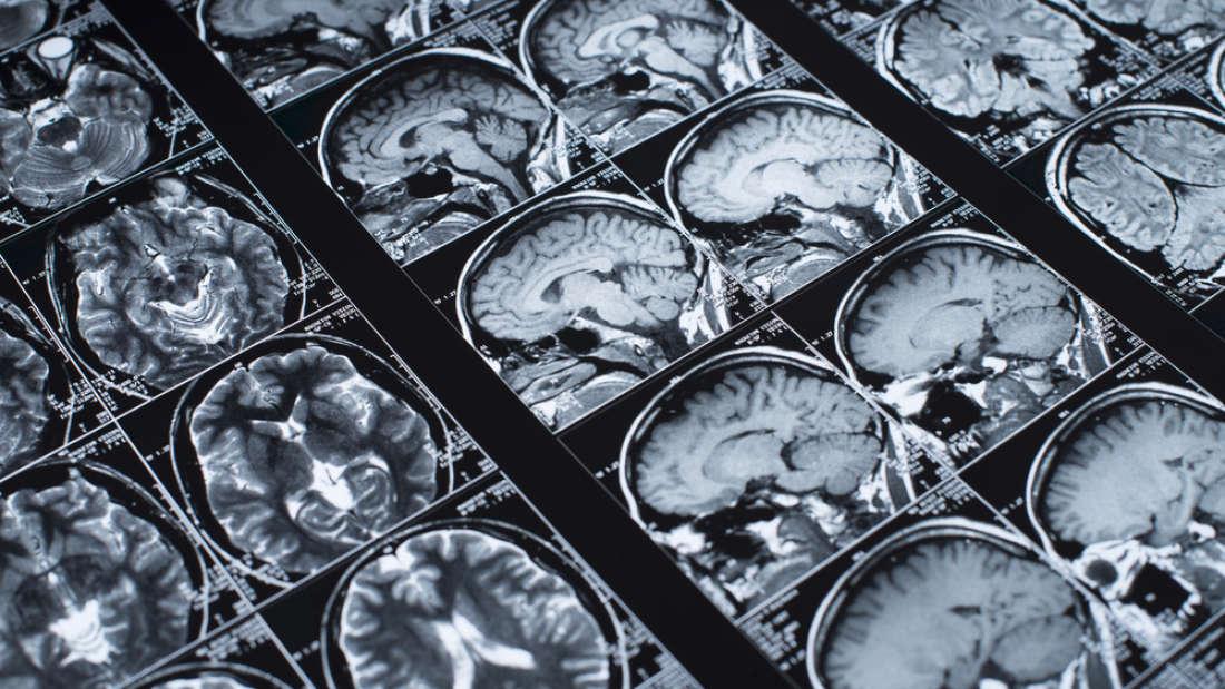 تأثير السمنة على الدماغ تظهره صور الرنين المغناطيسي