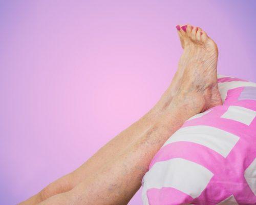 تورم الساقين: الأسباب والعلاج