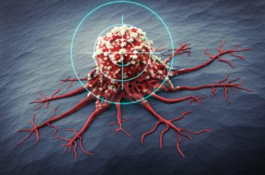 العلاجان المناعي والموجه لسرطان البروستات -تحفيز الجهاز المناعي للمريض من أجل علاج سرطان البروستات - الفرق بين العلاج المناعي والموجه للسرطان