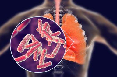 السل الرئوي: الأسباب والأعراض والتشخيص والعلاج - إنتان مزمن تسببه بكتيريا تدعى المتفطرات - النوع الأكثر شيوعًا من أنواع السل