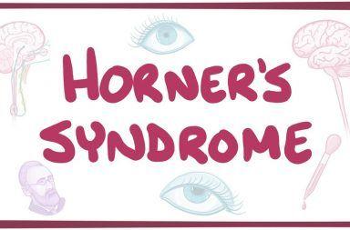 متلازمة هورنر الأسباب والأعراض والتشخيص والعلاج علاج متلازمة هورنر الجهاز العصبي الأعصاب الشلل الودي العصبي التصلب المتعدد
