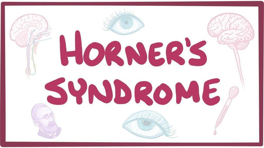 متلازمة هورنر: الأسباب والأعراض والتشخيص والعلاج