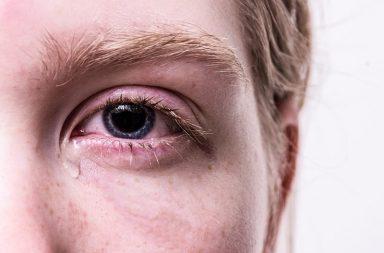 ما هي أسباب فرط دموع العين (الدماع)؟ وما علاجه - تضخم الأوعية الدموية لتصبح مرئية - الشعور بألم في العين - الاستجابة المناعية المفرطة