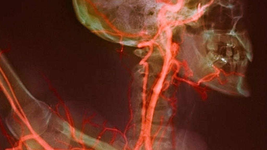تضيق الشريان السباتي: الأسباب والأعراض والتشخيص والعلاج