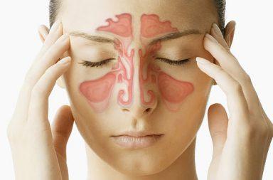 التهاب الجيوب: الأسباب والأعراض والتشخيص والعلاج - التهاب شائع للجيوب الأنفية - ألم في الأنف وسيلان مخاطي يستمر لأيام عدة