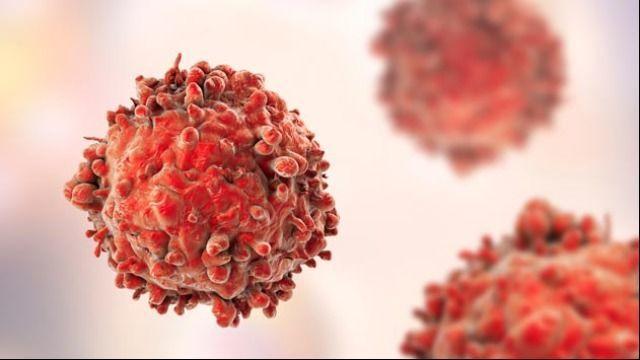 لمفوما هودجكين: التعريف والأعراض والتشخيص والعلاج