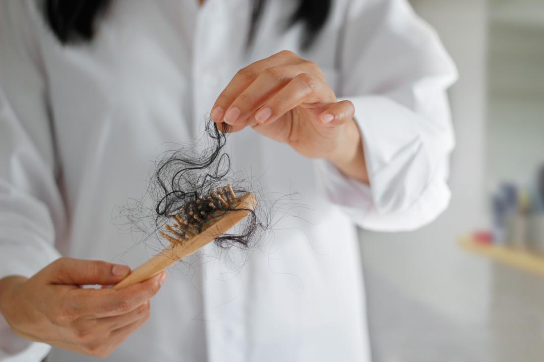 اكتشاف واسم جديد لمرض الفصام في شعر الإنسان