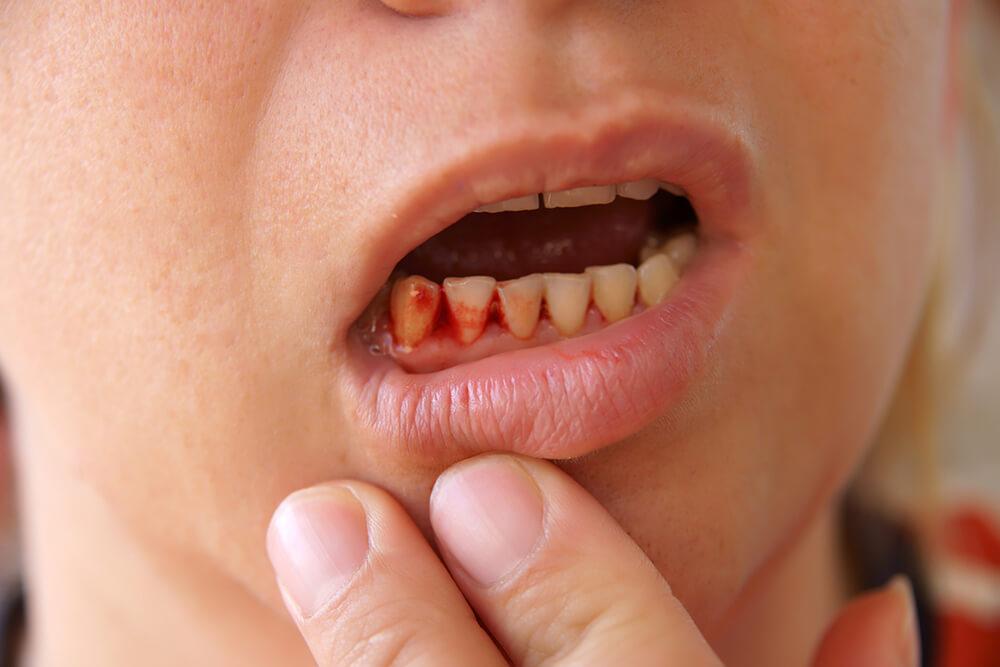 لماذا تنزف اللثة؟ - كيف تمنع حدوث التهاب اللثة وإيقاف نزيف أسنانك - الكشف المبكر عن أمراض اللثة - هل تسبب فرشاة الأسنان الخشنة نزيف اللثة - تنظيف الأسنان