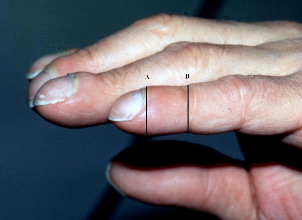 الاعتلال المفصلي العظمي الضخامي: الأسباب والأعراض والتشخيص والعلاج