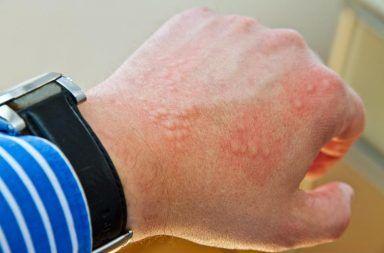داء الدودة الشصية (دودة الأنسيلوستوما) الأسباب والأعراض والعلاج والوقاية المناطق الاستوائية الدول النامية الانتقال عبر البراز
