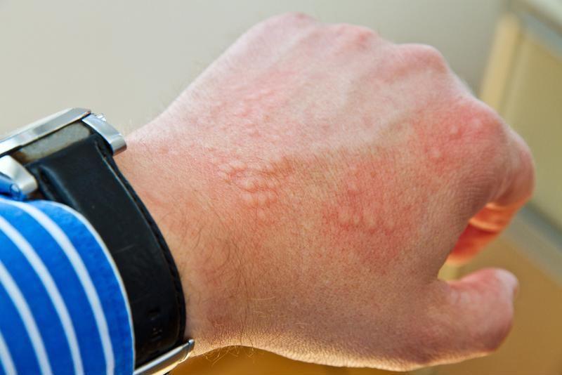 داء الدودة الشصية (دودة الأنسيلوستوما): الأسباب والأعراض والعلاج والوقاية