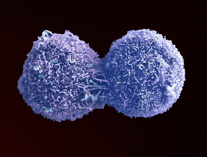 الخلية الأم يقرر انقسام الخلايا z8GiH6yPshgNDu2znm5a